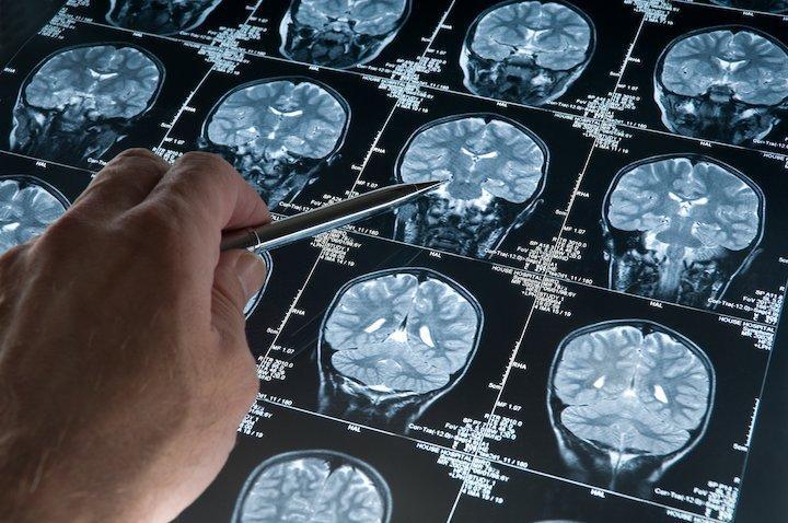 باشگاه پژوهشگران نقشه برداری مغز راه اندازی شد